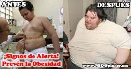 Prevenir la obesidad